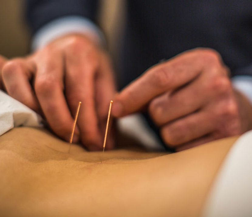 Acupuncture relieves pain & inflammation