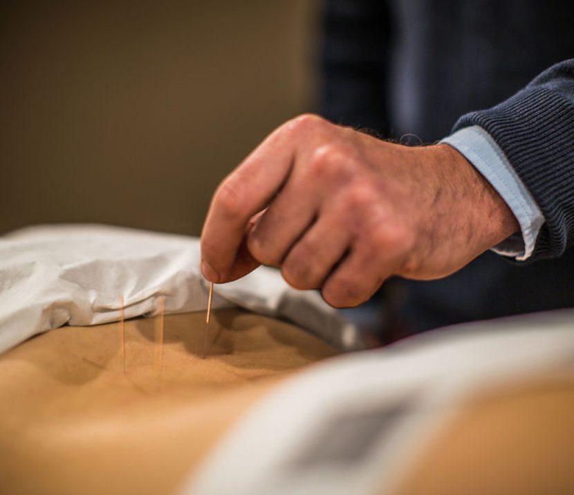 Acupuncture improves blood flow